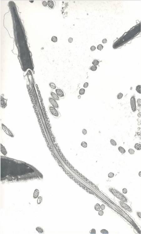 Spermatazoa.jpg